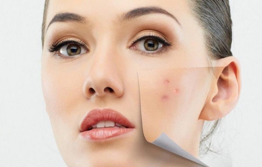 Làn da có thể bị phá hủy và tổn thương vì loạt thói quen thường thấy sau